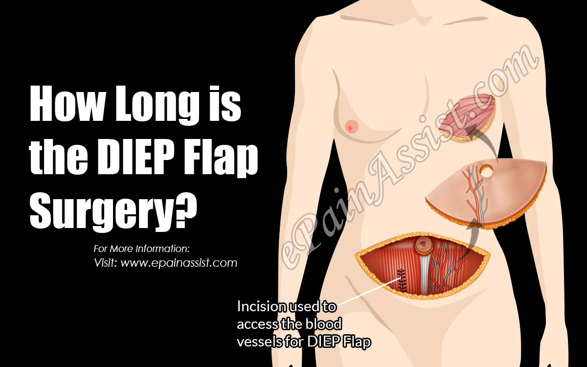 How Long is the DIEP Flap Surgery?
