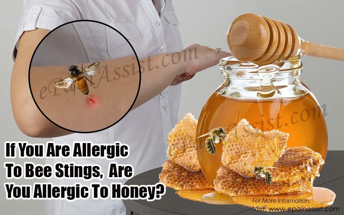 If You Are Allergic To Bee Stings, Are You Allergic To Honey?