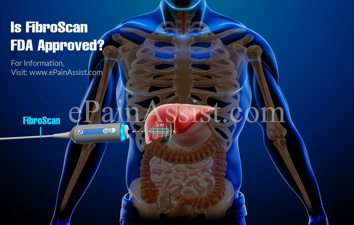 Is FibroScan FDA Approved?