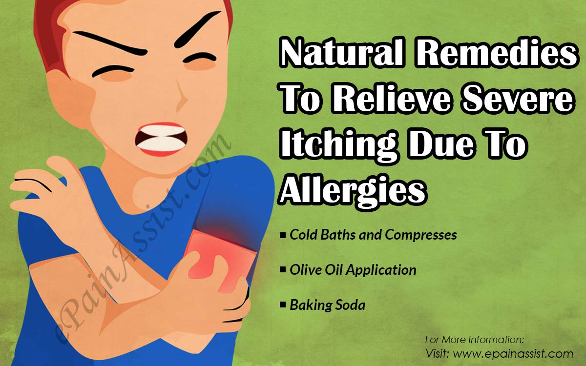 Natural Remedies To Relieve Severe Itching Due To Allergies