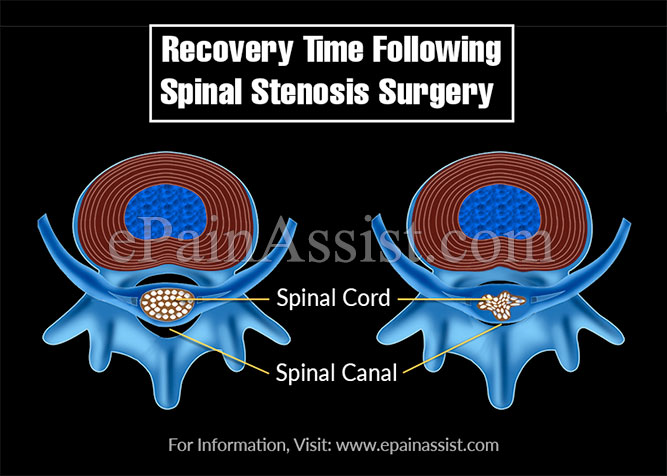 Recovery Time Following Spinal Stenosis Surgery