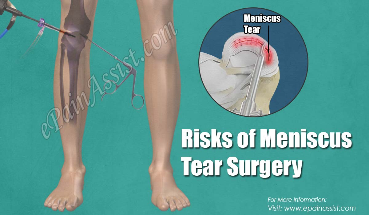 Knee meniscus: rupture, treatment, restoration of functionality 60