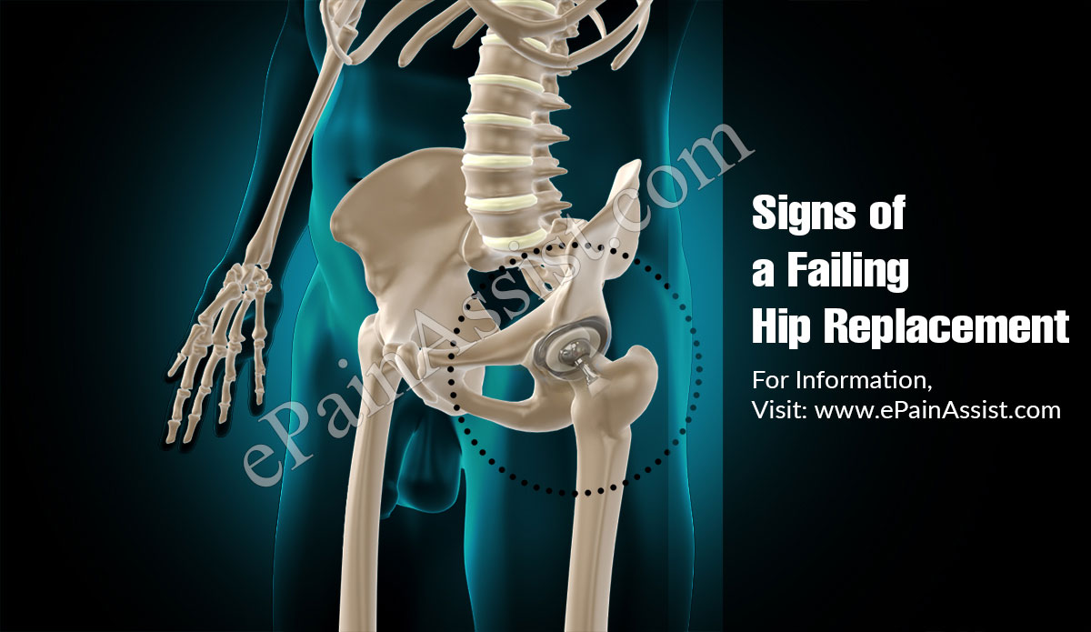 Signs Of A Failing Hip Replacement