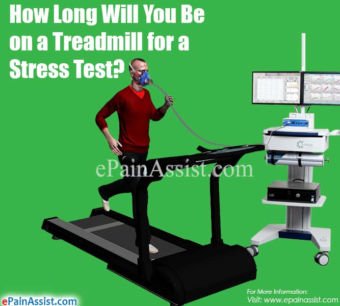 How Long Will You Be on a Treadmill for a Stress Test?