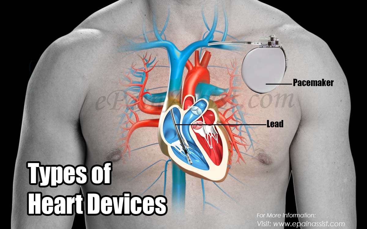 Types of Heart Devices