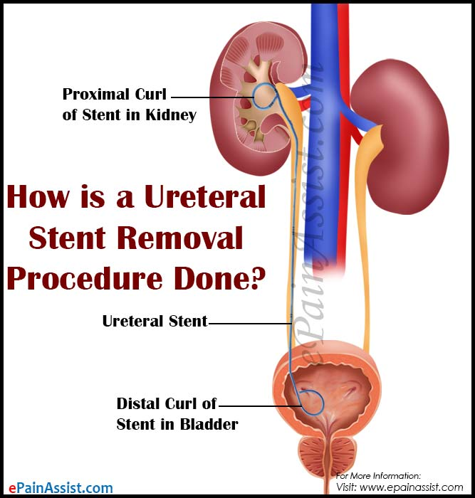 How is a Ureteral Stent Removal Procedure Done?