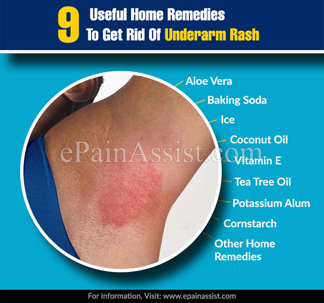 9 Useful Home Remedies To Get Rid Of Underarm Rash