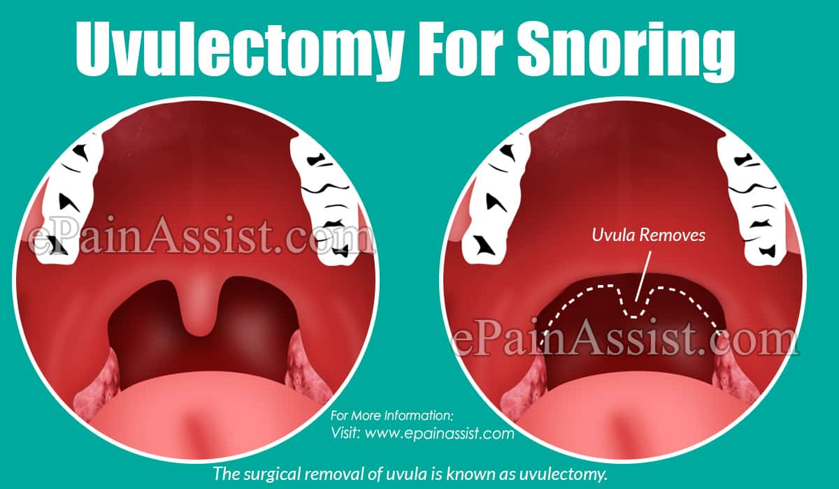 Uvulectomy For Snoring