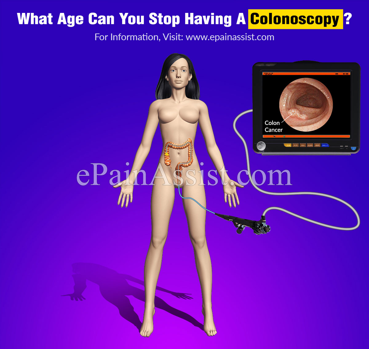 What Age Can You Stop Having A Colonoscopy?