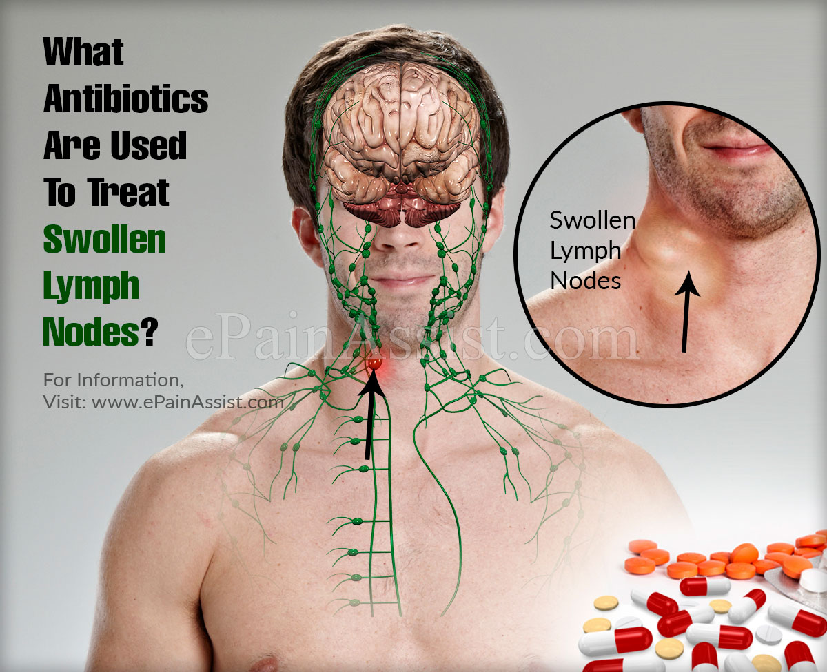What Antibiotics Are Used To Treat Swollen Lymph Nodes?