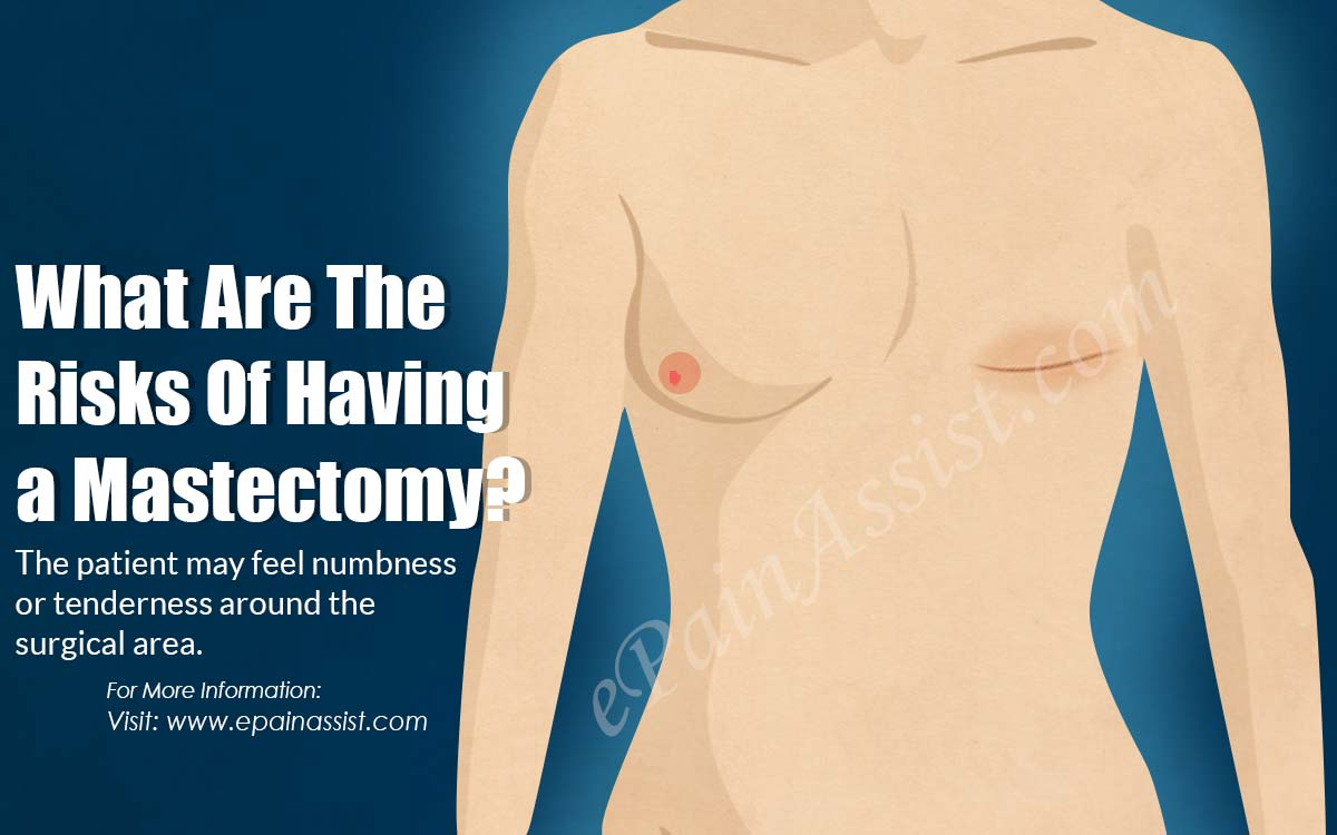 What Are The Risks Of Having A Mastectomy?