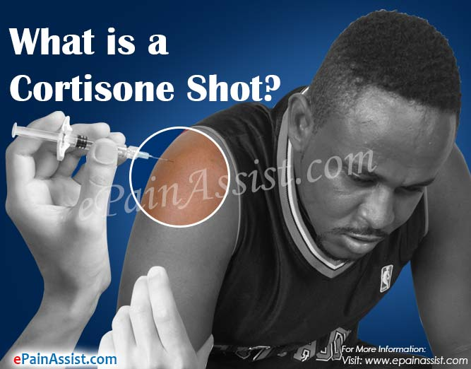 How Long Does a Cortisone Shot Last & What are its Side Effects?