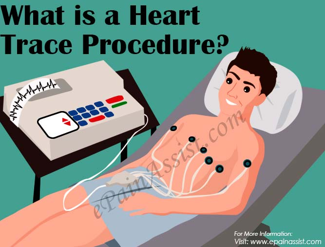 What is a Heart Trace Procedure?