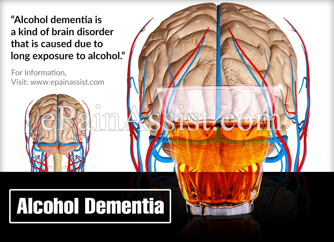 What is Alcohol Dementia?