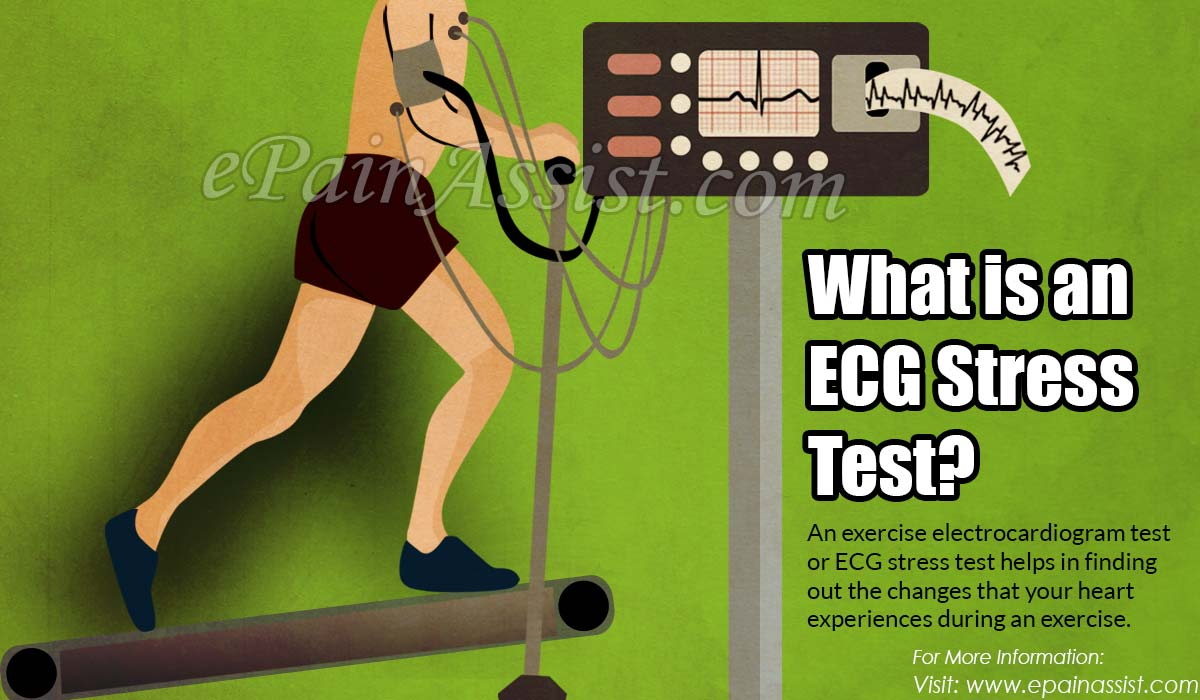 What is an ECG Stress Test?