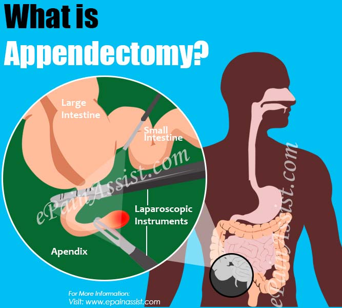 What is Appendectomy?