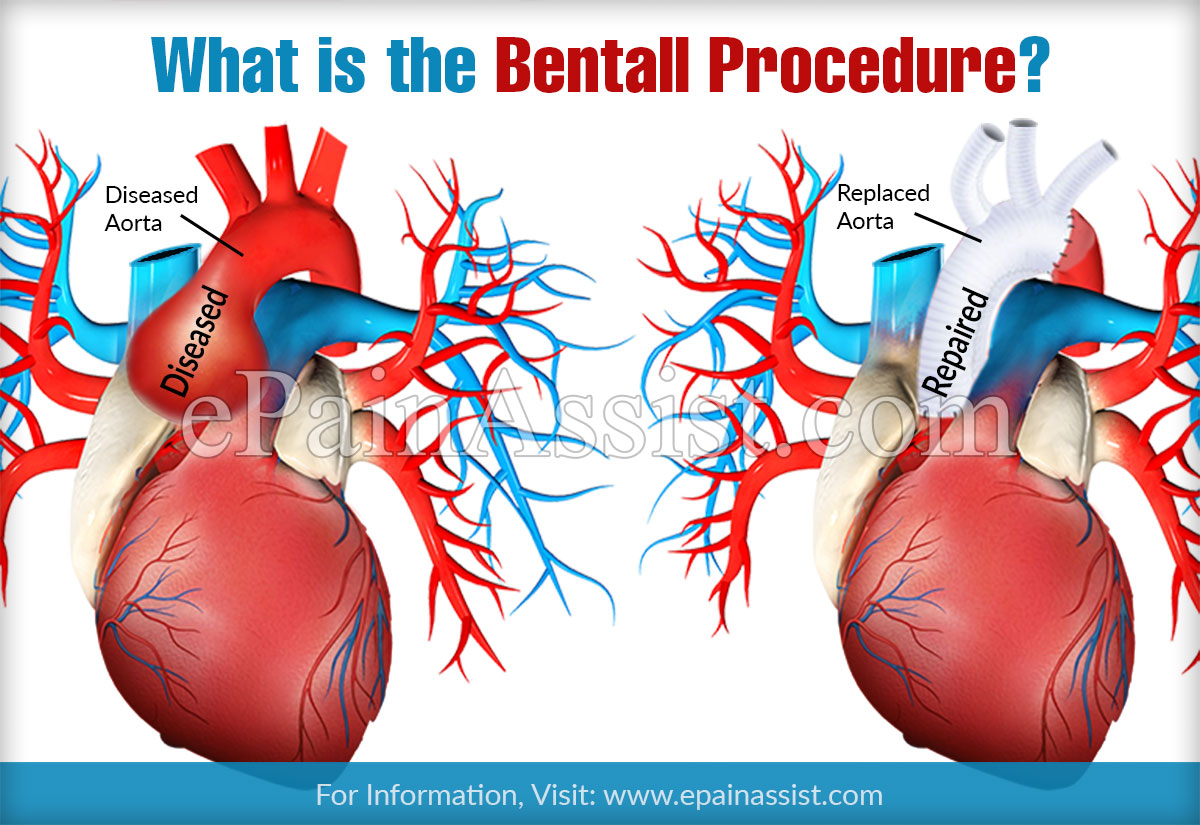 What is the Bentall Procedure?
