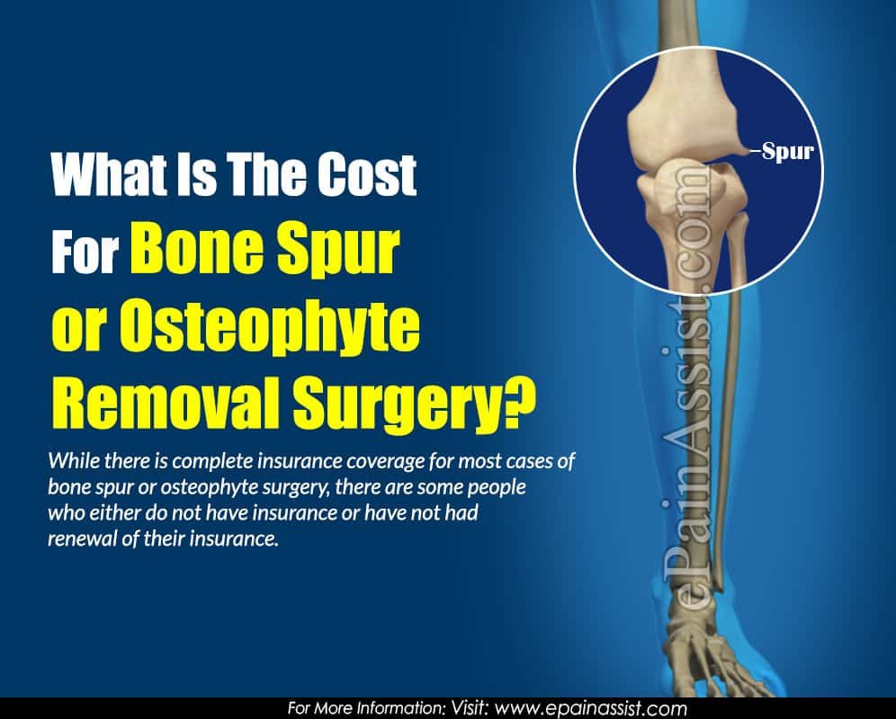 What Is The Cost For Bone Spur or Osteophyte Removal Surgery?