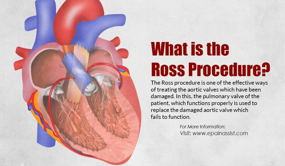 What is the Ross Procedure?