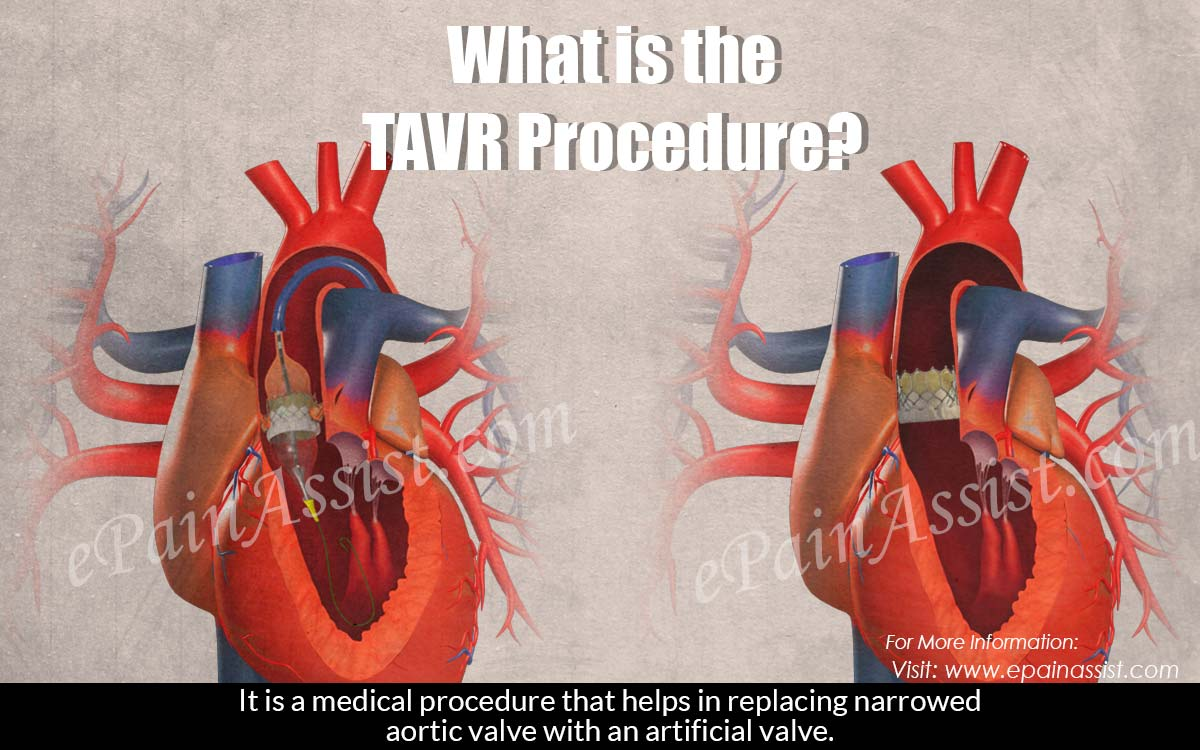 What is the TAVR Procedure?