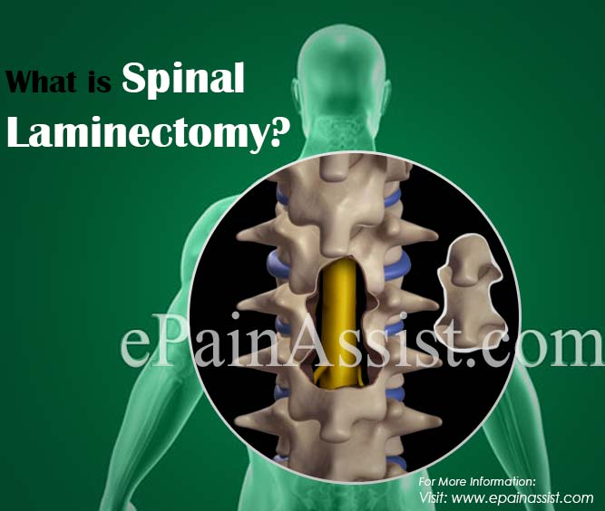 What is Spinal Laminectomy?