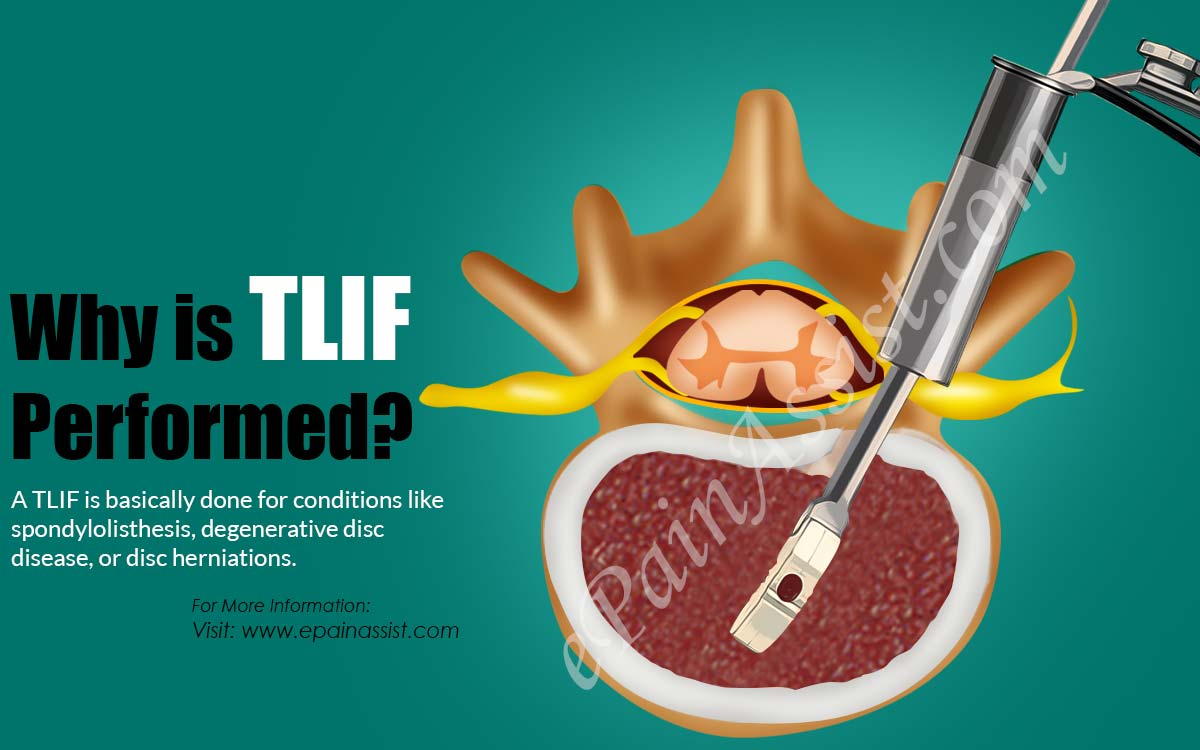 Why is TLIF Performed?