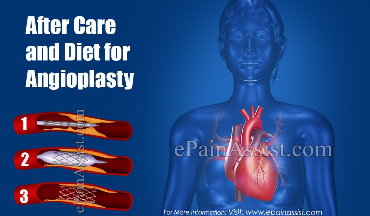 After Care and Diet for Angioplasty