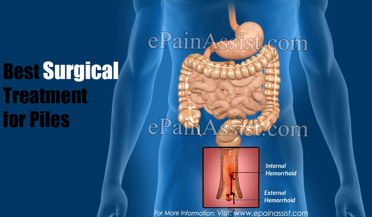 Best Surgical Treatment for Piles