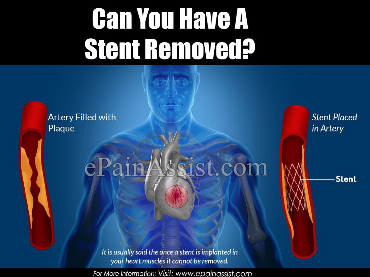 Can You Have a Stent Removed?