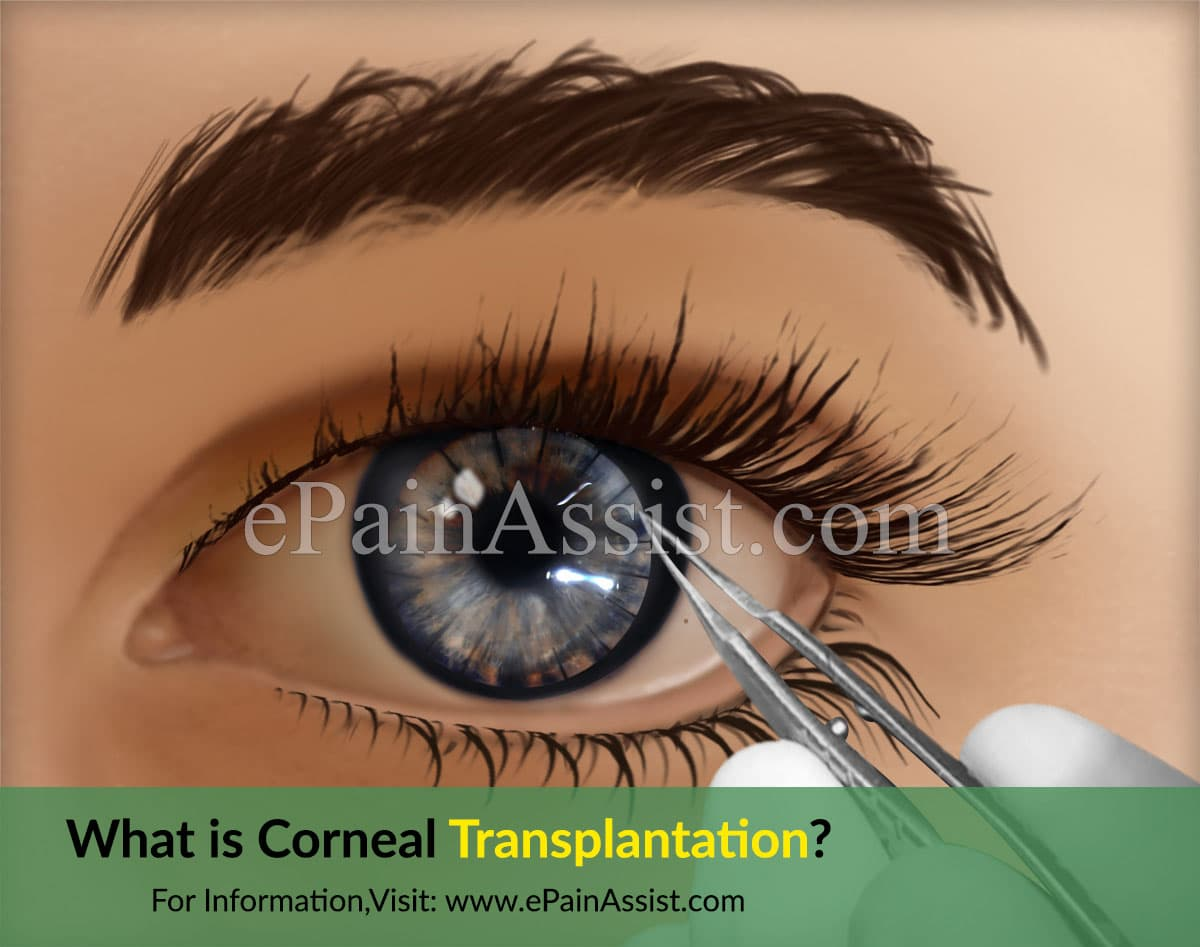 What is Corneal Transplantation?