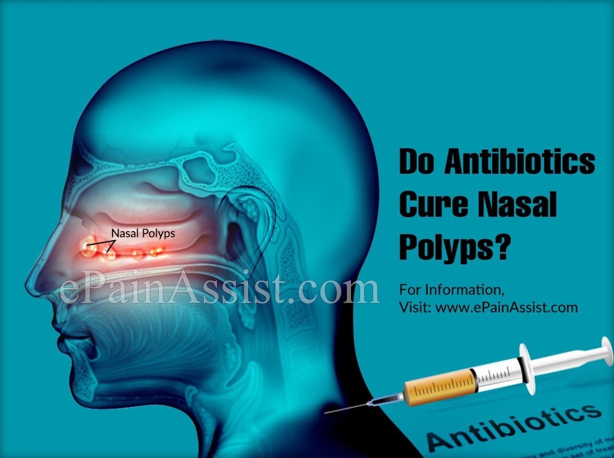 Do Antibiotics Cure Nasal Polyps?