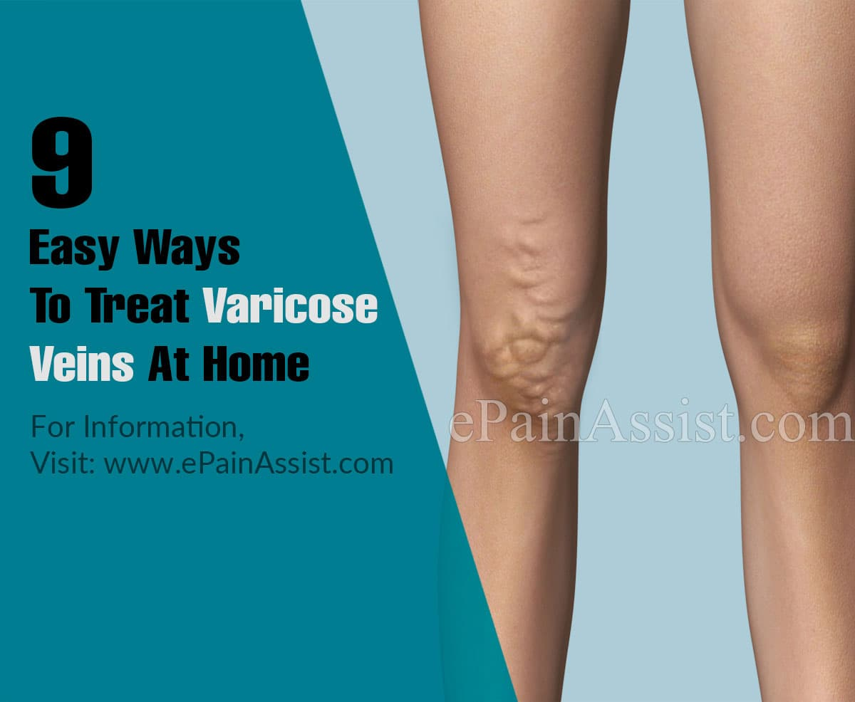 9 Easy Ways To Treat Varicose Veins At Home