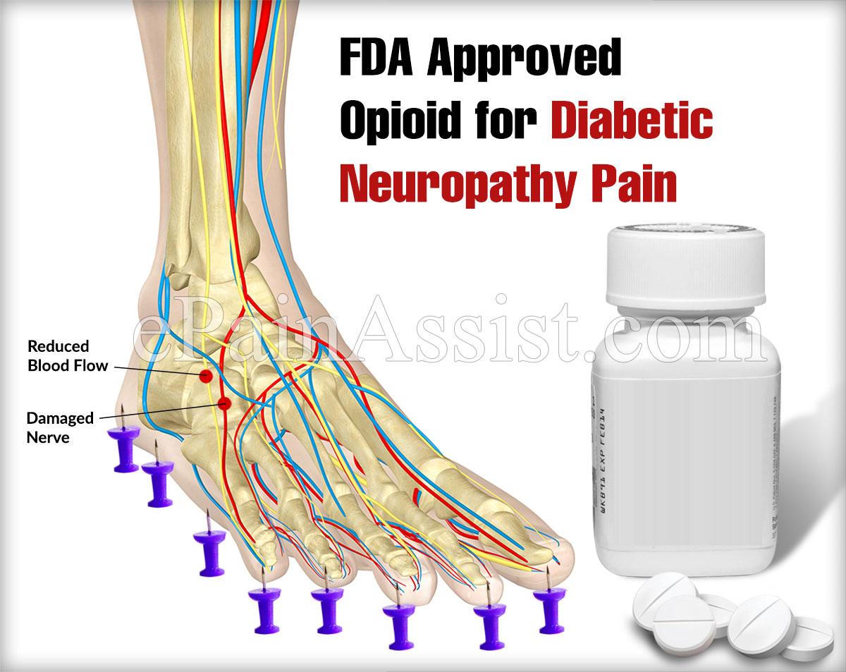 FDA Approved Opioid for Diabetic Neuropathy Pain