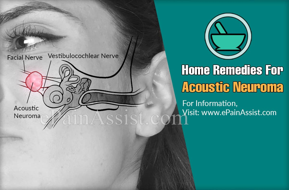 Home Remedies For Acoustic Neuroma
