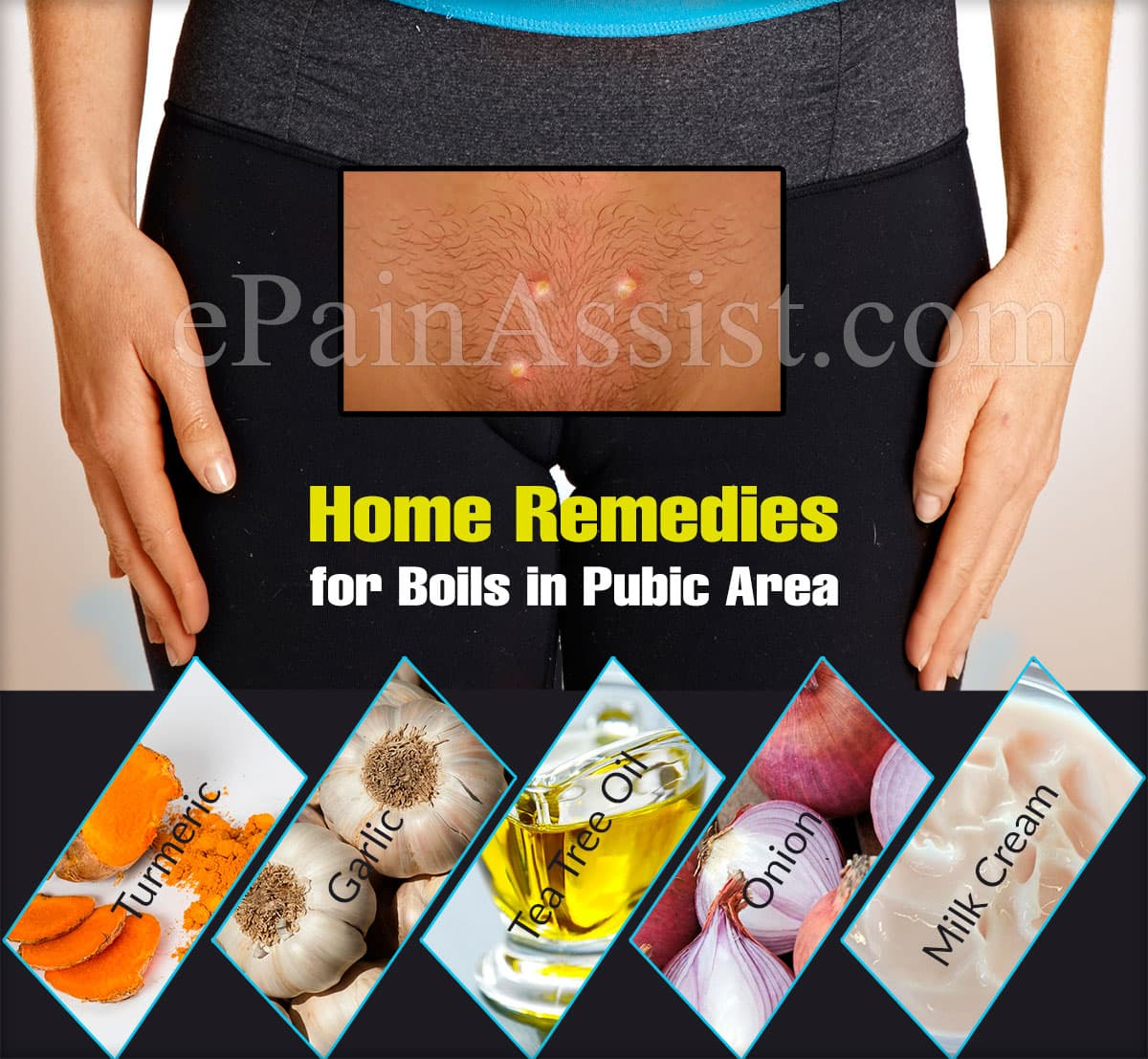 Home Remedies for Boils in Pubic Area