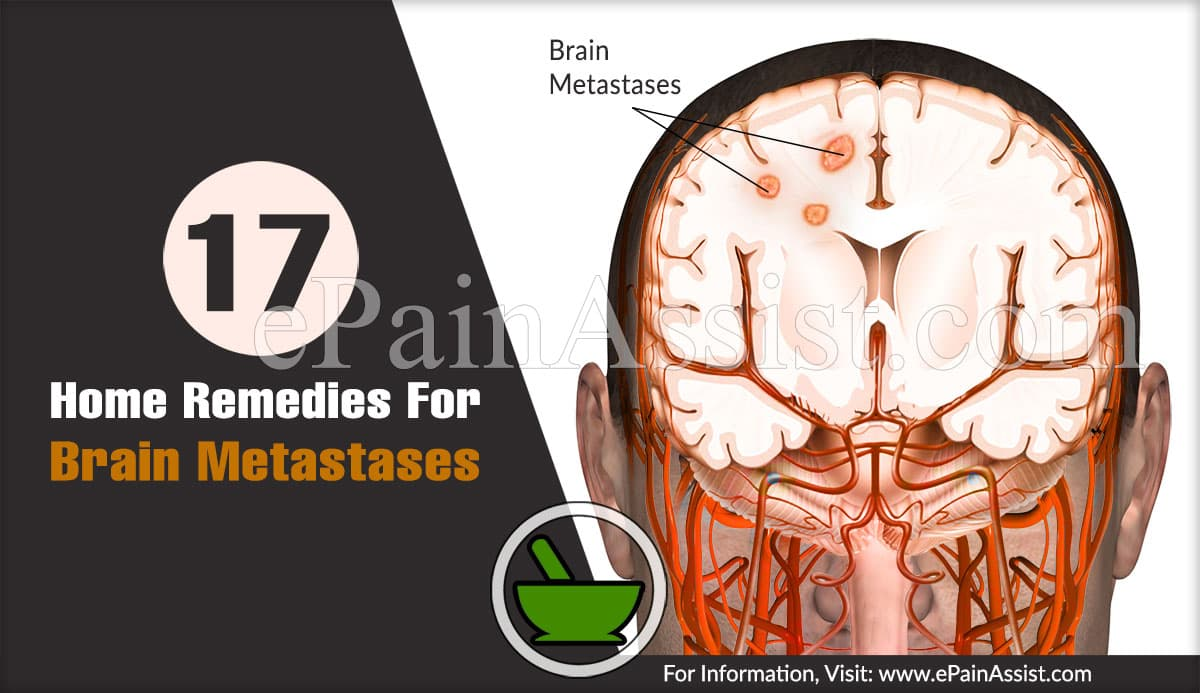Home Remedies For Brain Metastases