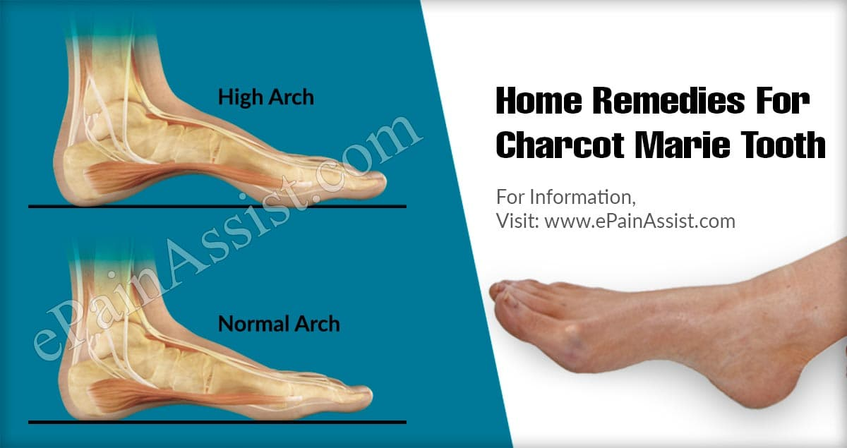 Home Remedies For Charcot Marie Tooth