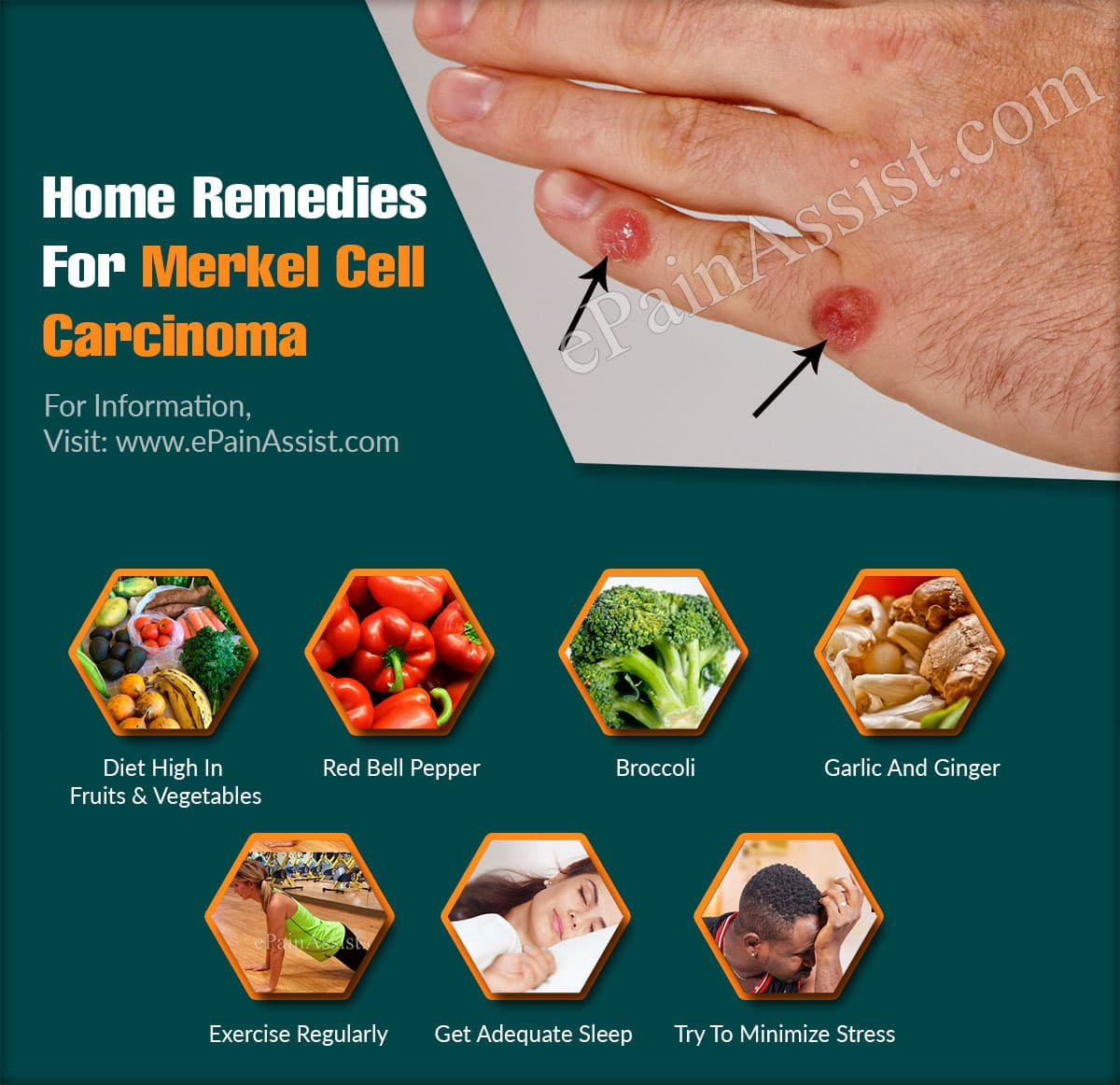 Home Remedies For Merkel Cell Carcinoma