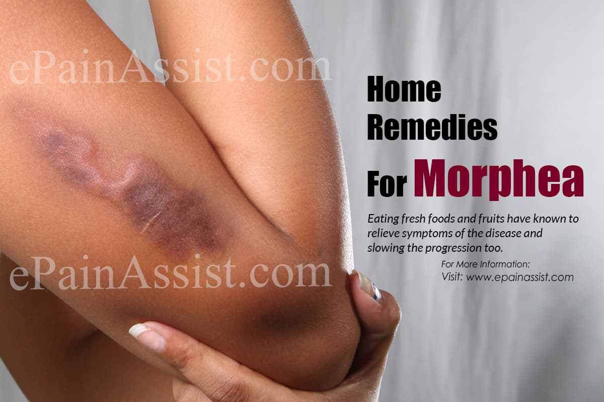 Home Remedies For Morphea