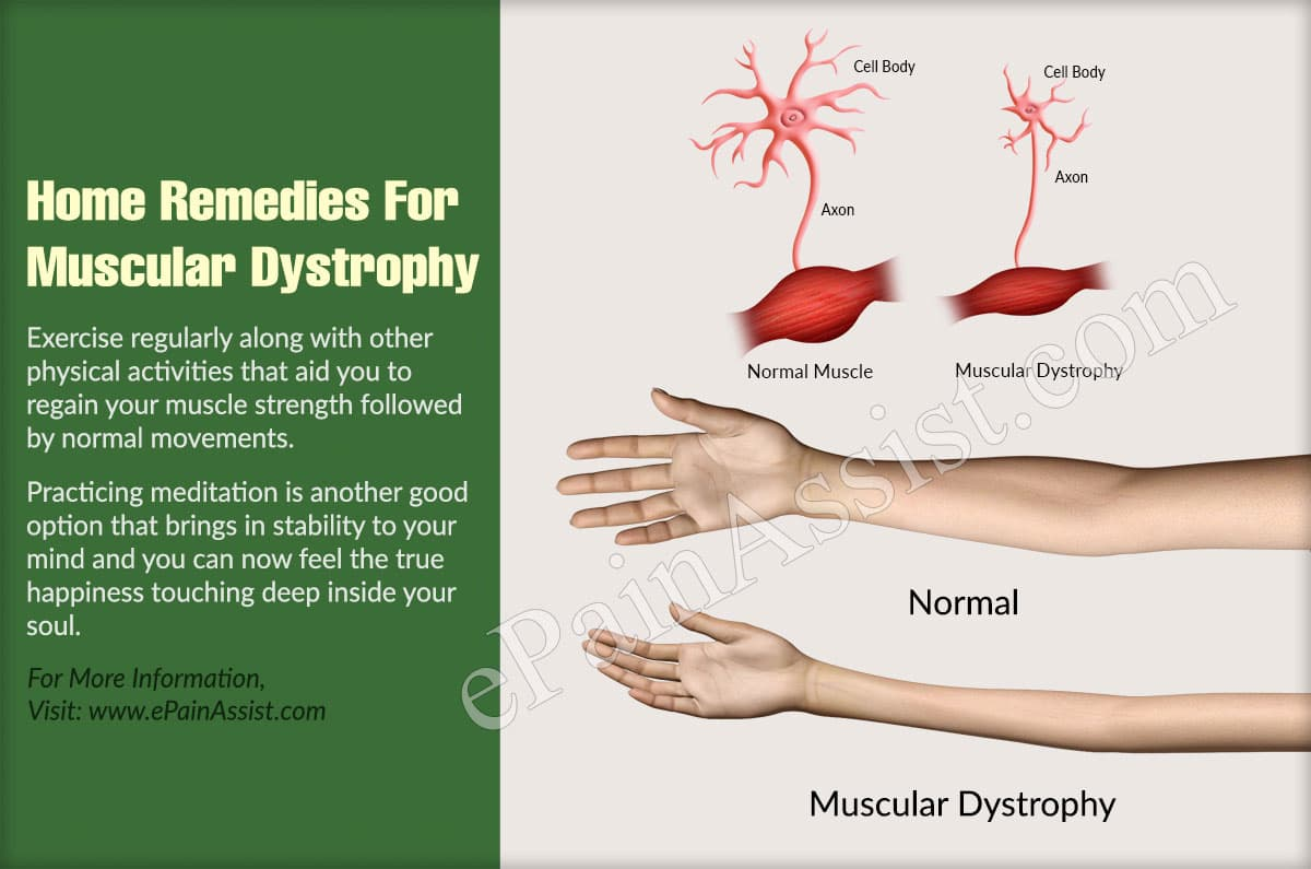 Home Remedies For Muscular Dystrophy