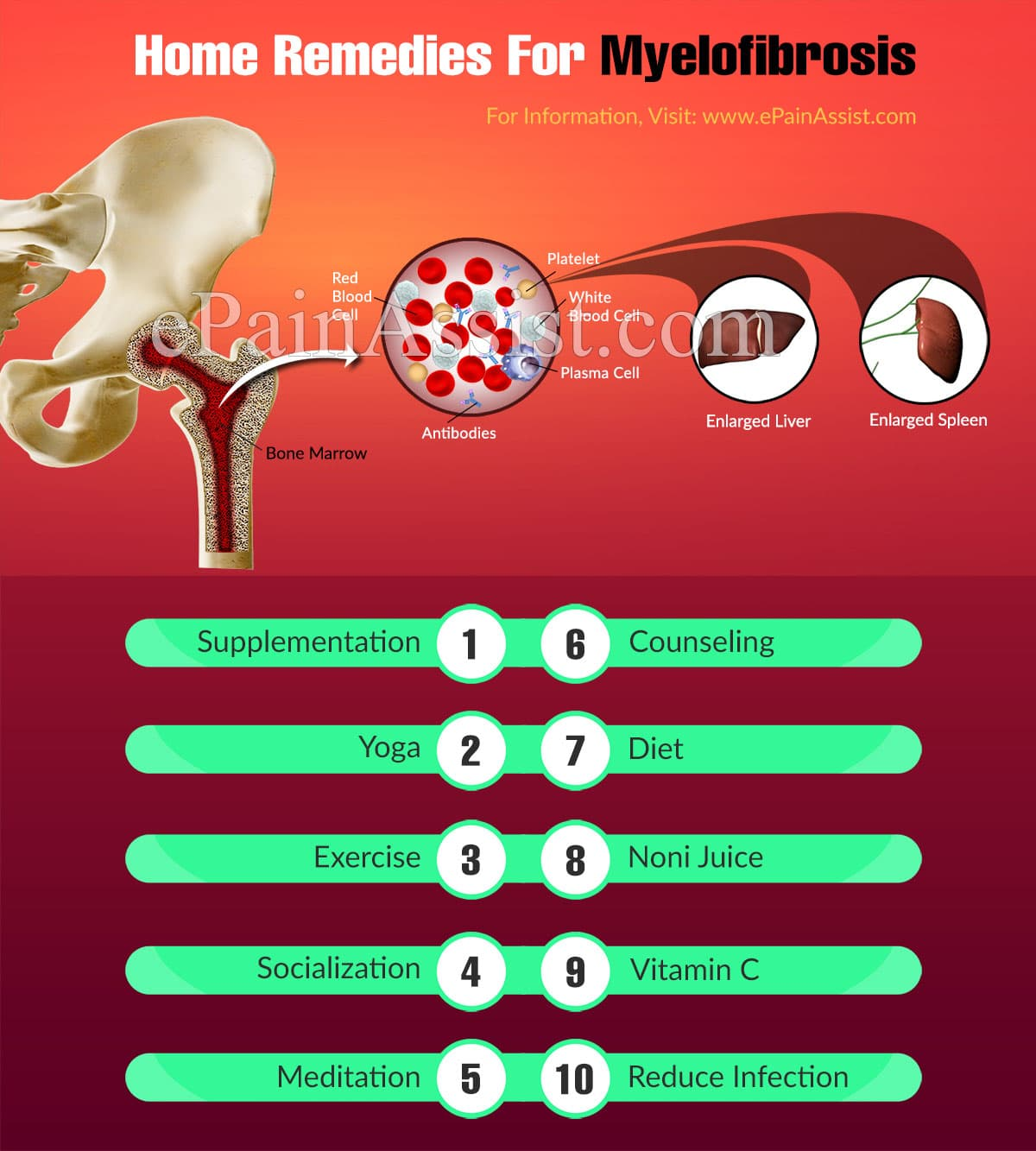 Home Remedies For Myelofibrosis
