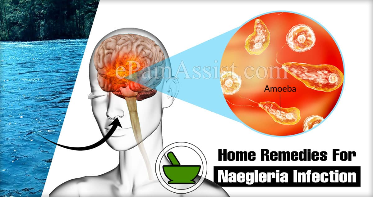 Home Remedies For Naegleria Infection