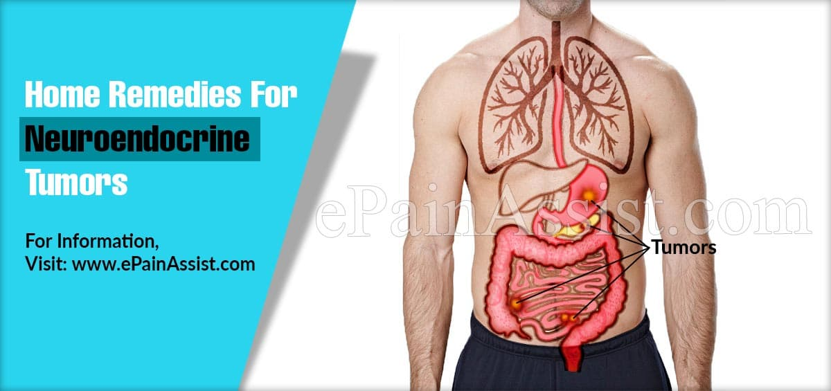 Home Remedies For Neuroendocrine Tumors