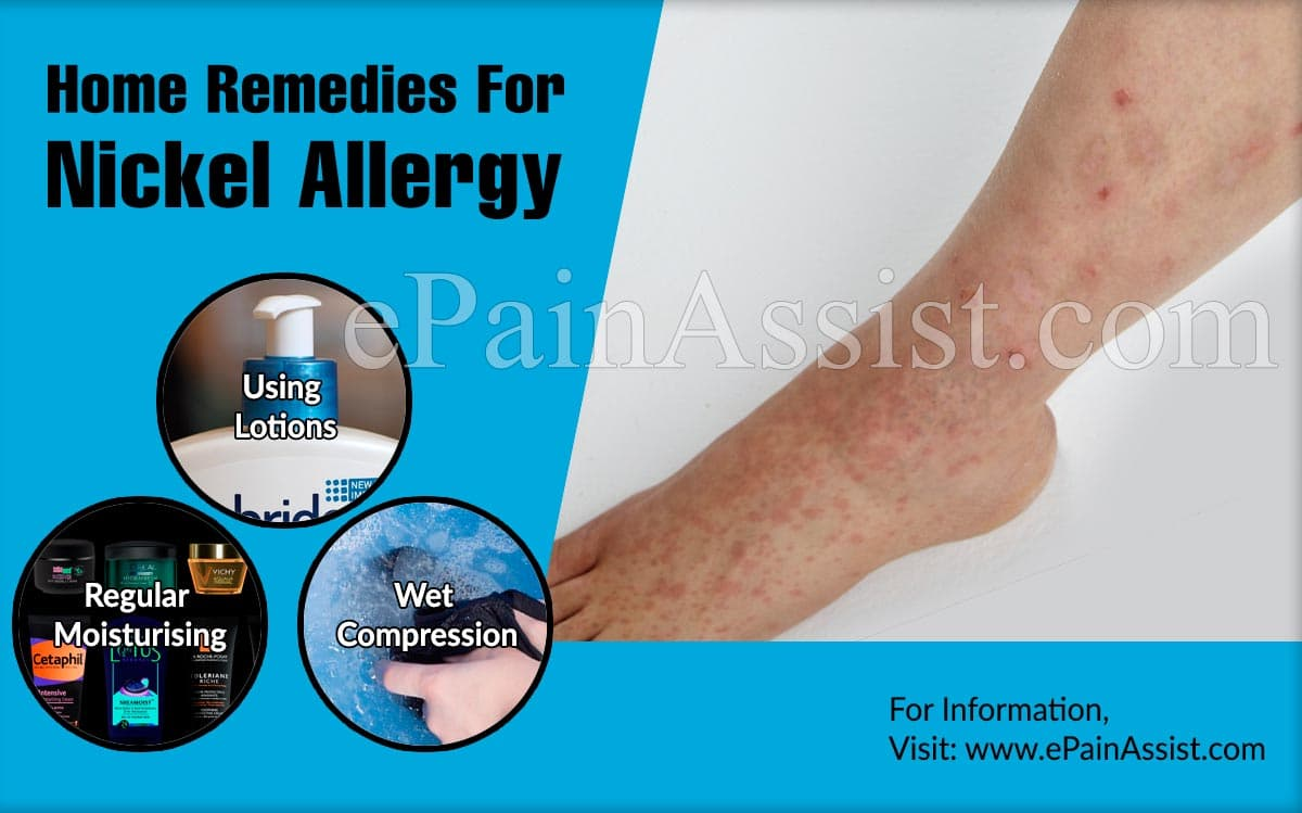 Home Remedies For Nickel Allergy