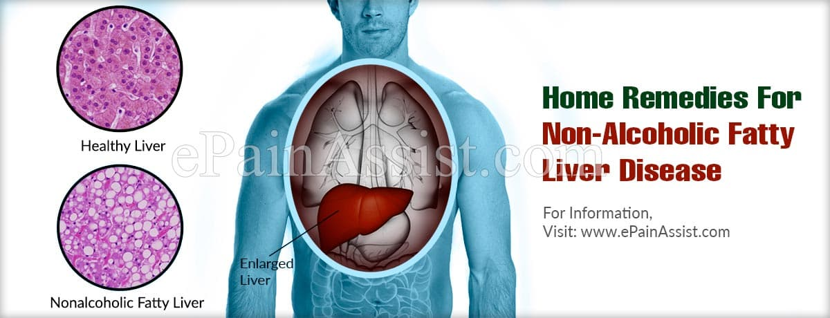 Home Remedies For Non-Alcoholic Fatty Liver Disease