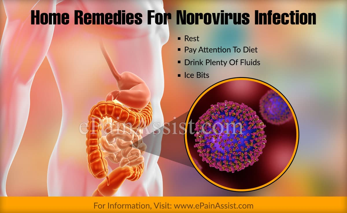 Home Remedies For Norovirus Infection