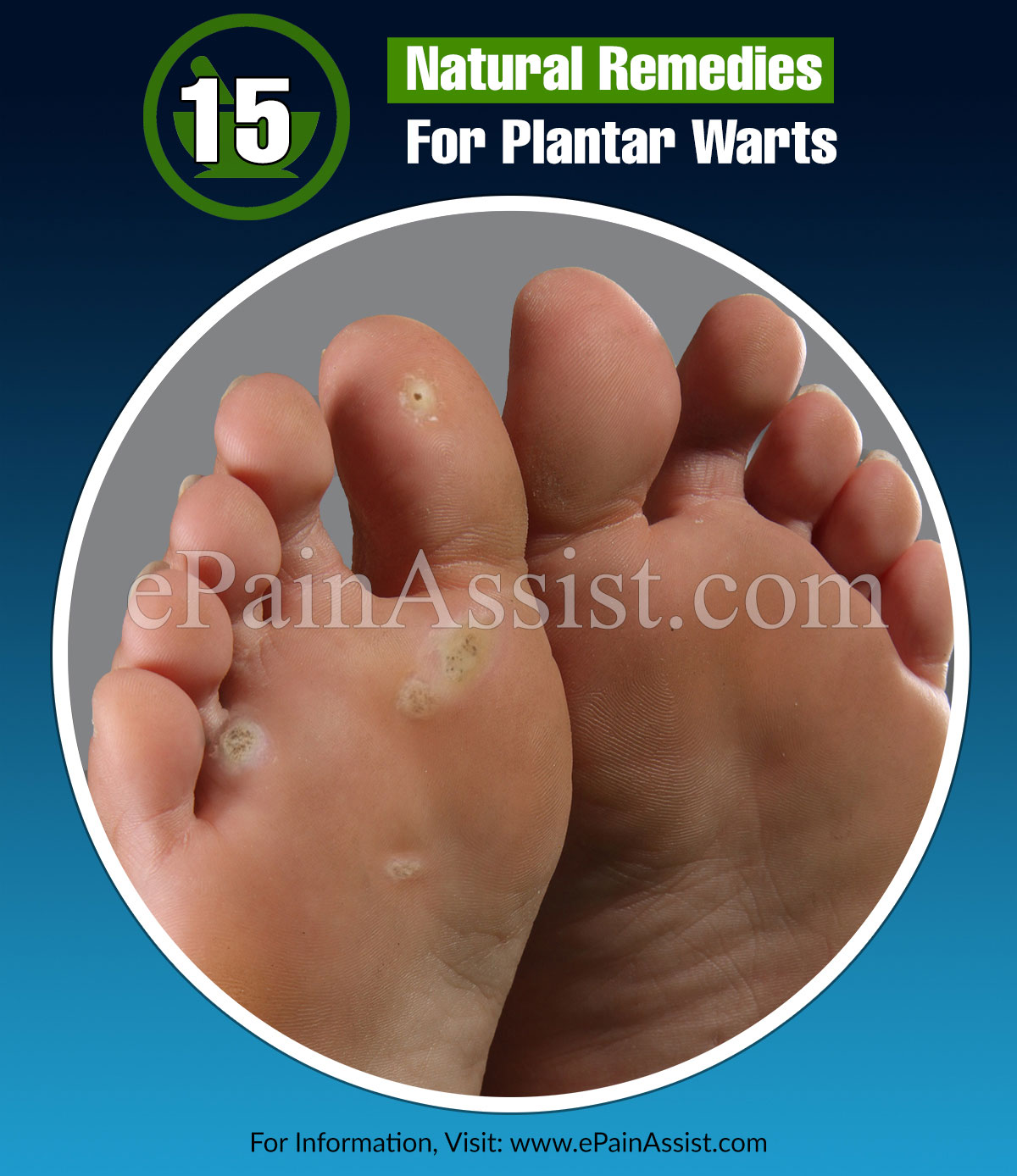 15 Home Remedies For Plantar Warts & Its Preventive Measures