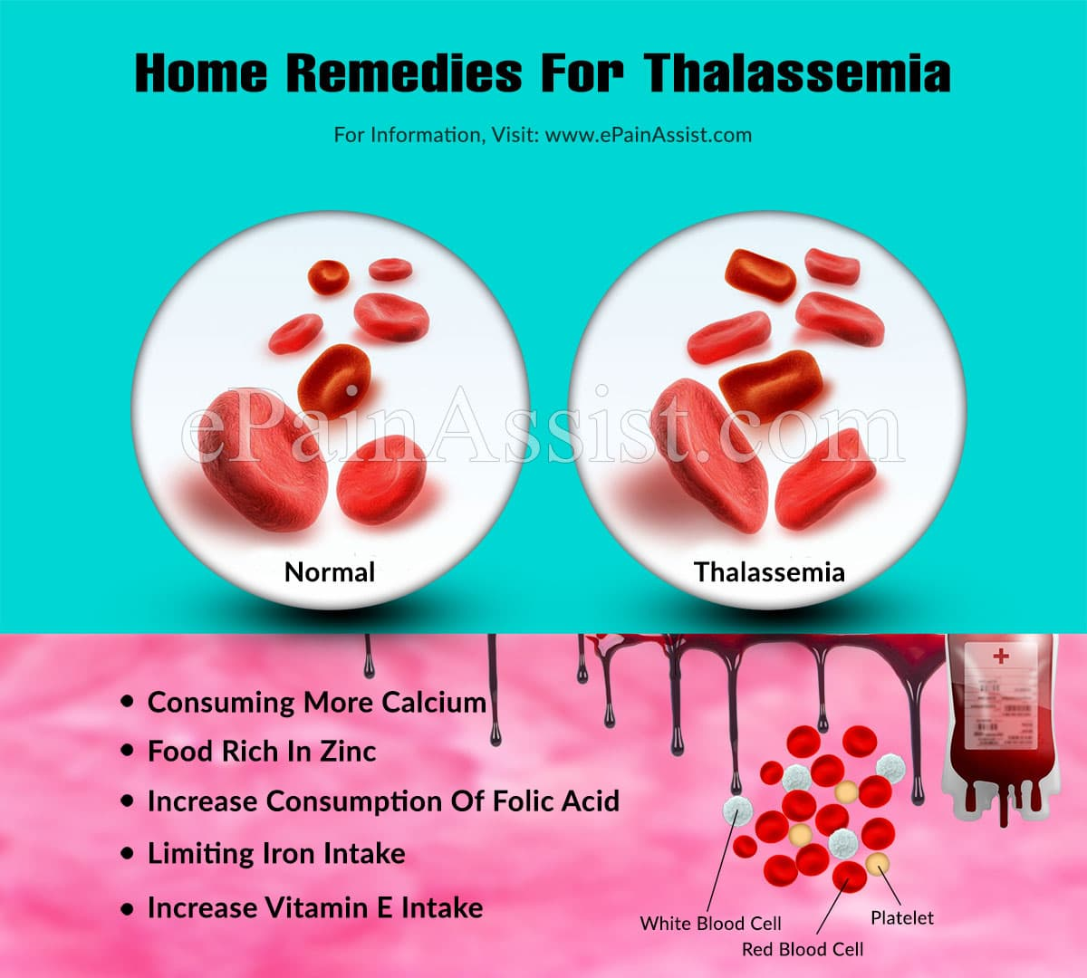 Home Remedies For Thalassemia
