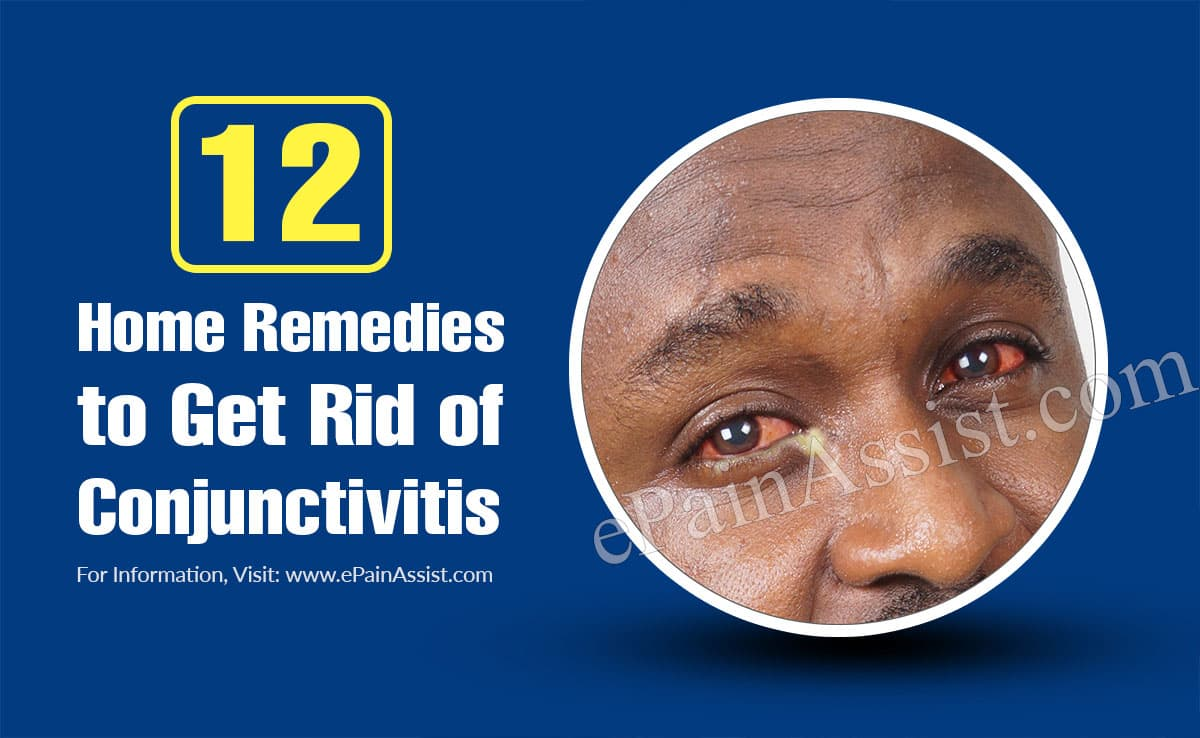12 Home Remedies to Get Rid of Conjunctivitis