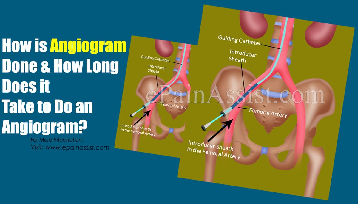 How is Angiogram Done & How Long Does it Take to Do an Angiogram?